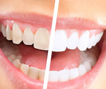 Teeth Whitening Trends
